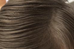 頭皮のスキンケア